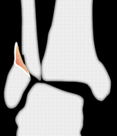 ankle_fracture_2016-10-19