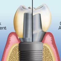 Osseointegration Implants Market Competitive Landscape, Changing Market Trends and Emerging Opportunities
