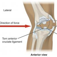 3 Useful Techniques for Quick ACL Surgery Recovery