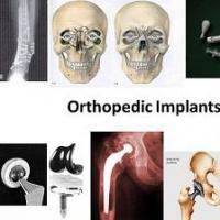 Orthopedic Implants Market Worth  $74,796 Million, by 2023