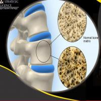 Osteoporosis Drugs Market by Therapeutics, Diagnostics, Patient, Drugs Policy and Regulatory Landscape