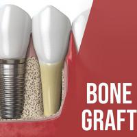Bone Graft Market Size, Leading Players, Segments Analysis and Forecast to 2024