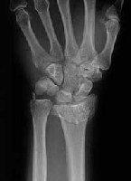 Radiological Evaluation of Distal Radius Fracture: What Junior ...