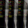 8 point selection optimum osteotomy