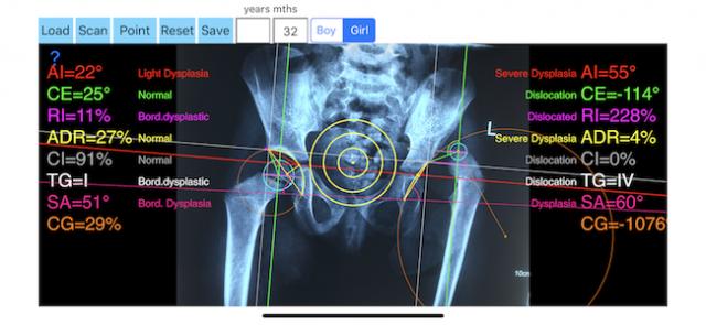 Hip Dysplasia App - iPhone