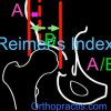 How to measure Reimer's Index with the App in i-tunes