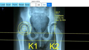 How to measure the Centre Edge Angle of the hip joint with the CentreEdgeApp