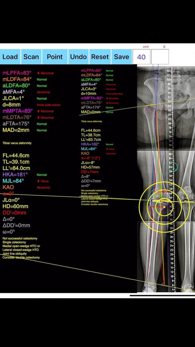 OsteotomyApp