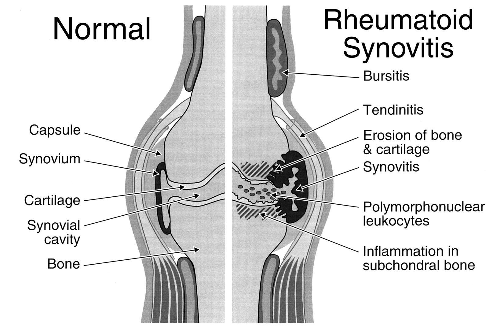 synovitis is arousal of the film inside layer a joint